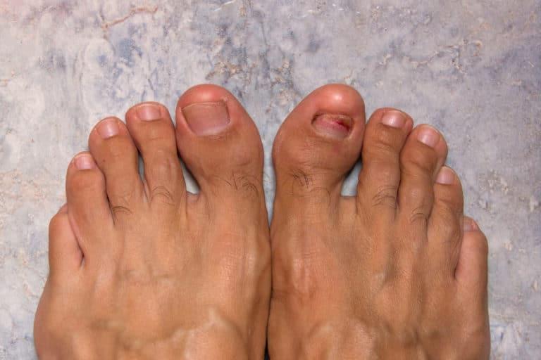 Zwei männliche Füße, am großen Zeh des rechten Fußes hat sich der Nagel komplett vom Nagelbnett abgelöst.