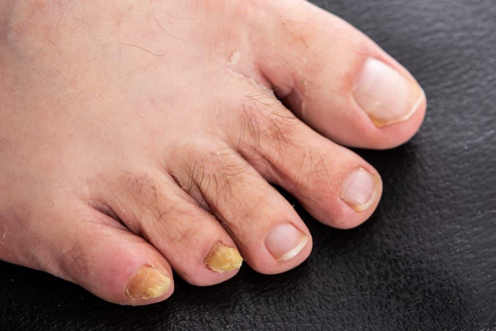 Man kann den Nagelpilz an den zwei kleinen Zehen durch die gelben Zehennägel erkennen. Es handelt sich um ein fortgeschrittenes Stadium von Onychomykose.