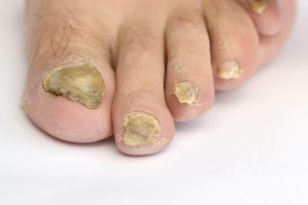 Nagelpilz an allen fünf Zehen des Fußes mit stark verhornten und gekrümmten Nägeln.