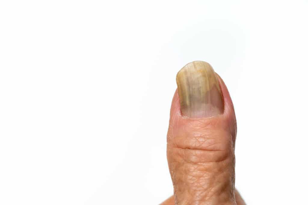 Weit fortgeschrittener Daumennagelpilz gelblich verfärbt am Finger
