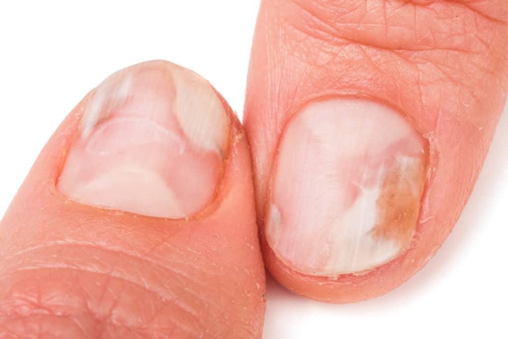 Fingernagelpilz Daumen weiß im Anfangsstadium