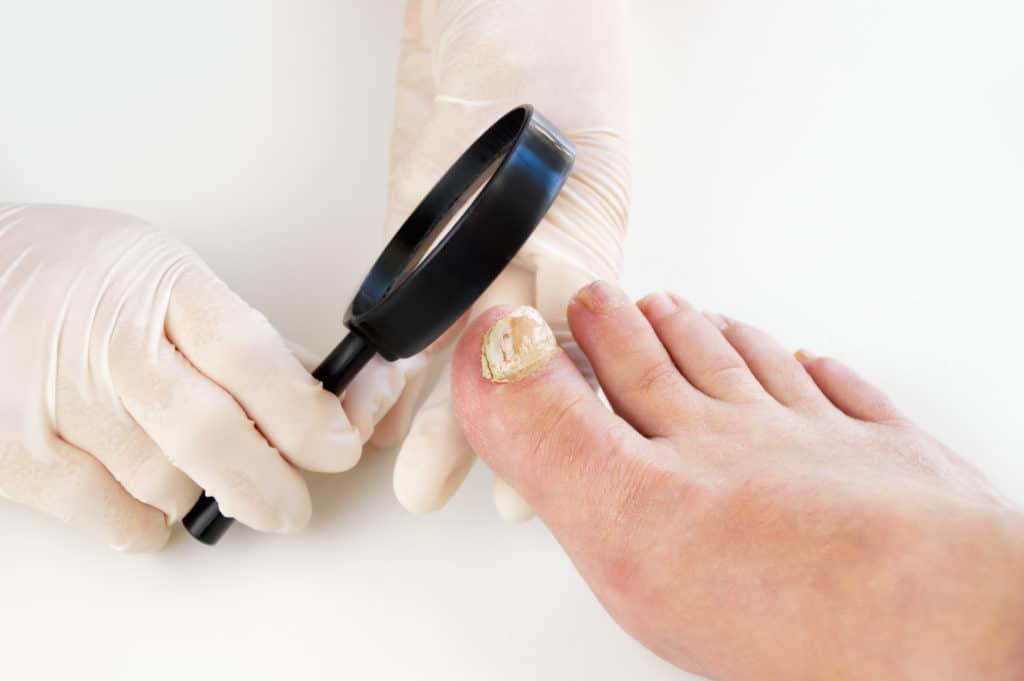 Arzt mit Lupe untersucht Fuß und Nagelpilz