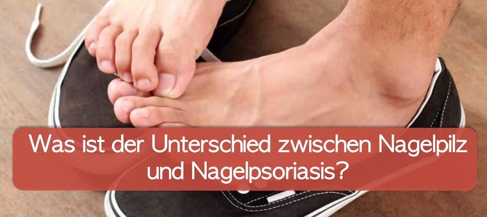 Nagelpsoriasis oder Nagelpilz? Unterschied erkennen!