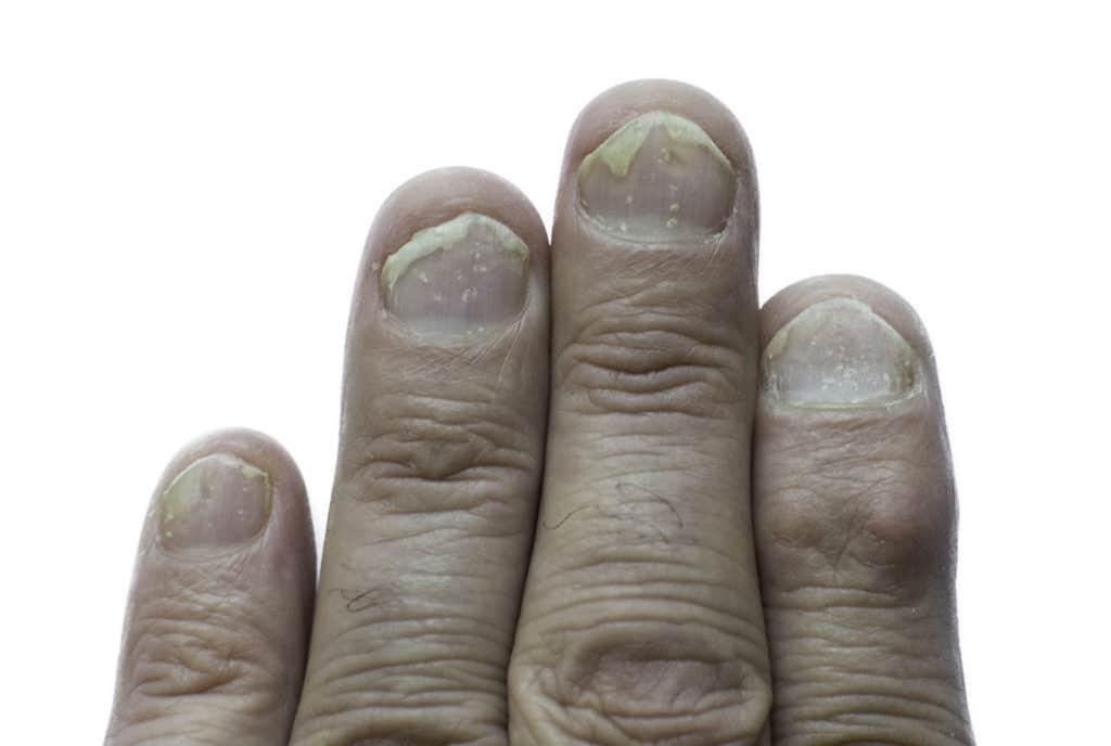 Nagelpsoriasis an den Fingernägeln