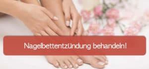 Read more about the article Was tun bei einer Nagelbettentzündung?