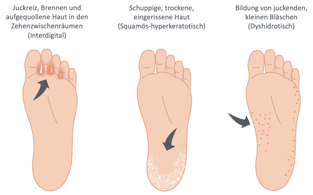 Fußpilz erkennt man an verschiedenen Symptomen und Ausprägungen. Auf der linken Seite sieht man die Bläschen in den Zehenzwischenräumen (interdigitale Form), in der Mitte an der Ferse (Squamös-hyperkeratotische Form) und rechts ist ein Bild mit Bläschen an der Fußaußenseite (dyshidrotische Form).