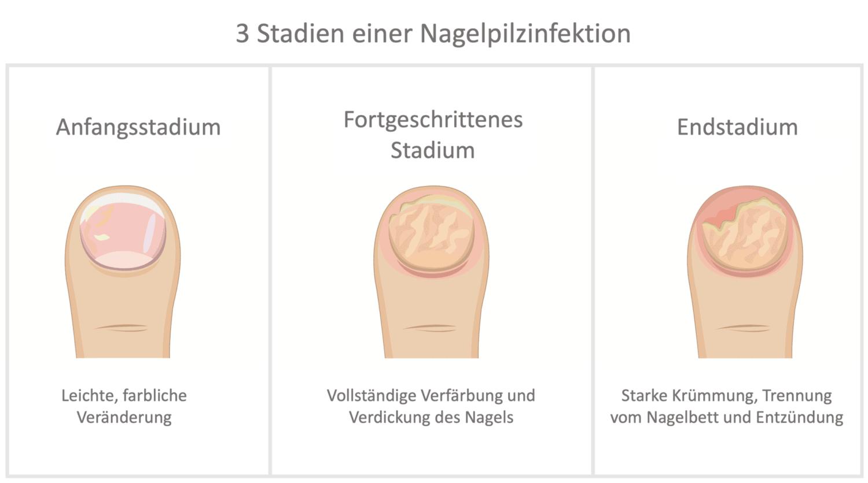Die drei Stadien von Nagelpilz: Stadium 1 (Anfangsstadium), Stadium 2 (fortgeschrittenes Stadium), Stadium 3 (Endstadium) von Nagelpilz
