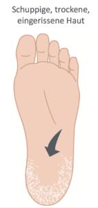 Fuß mit schuppoger und trockener Haut
