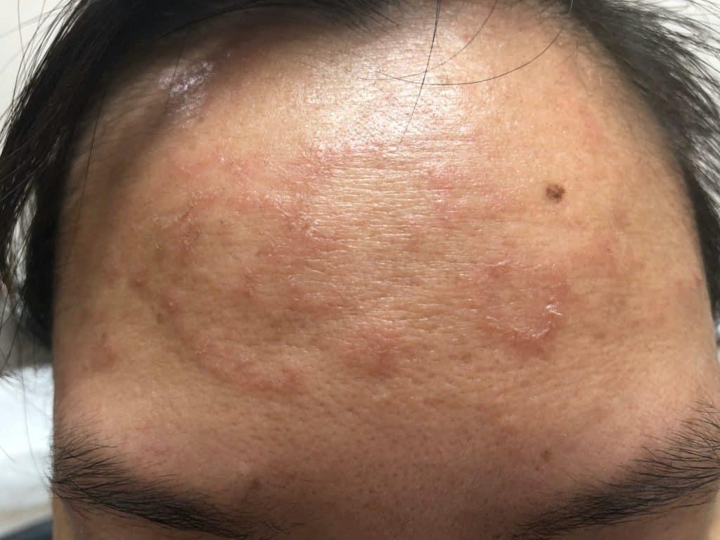 Hautpilz im Gesicht eines Mannes