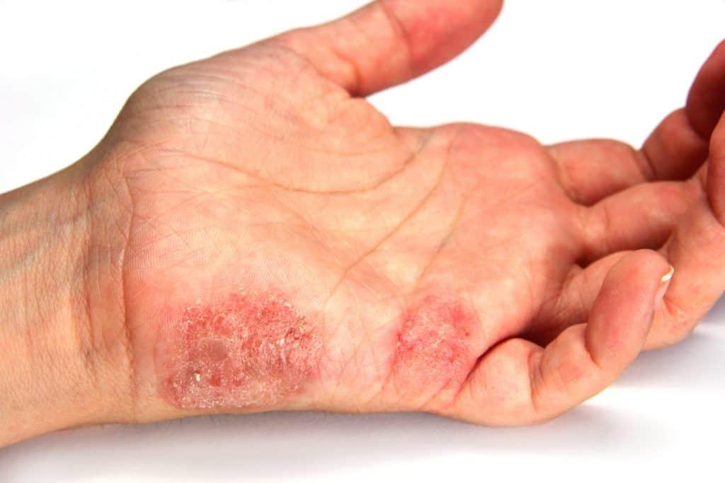 Linke Hand ist von Handpilz befallen.