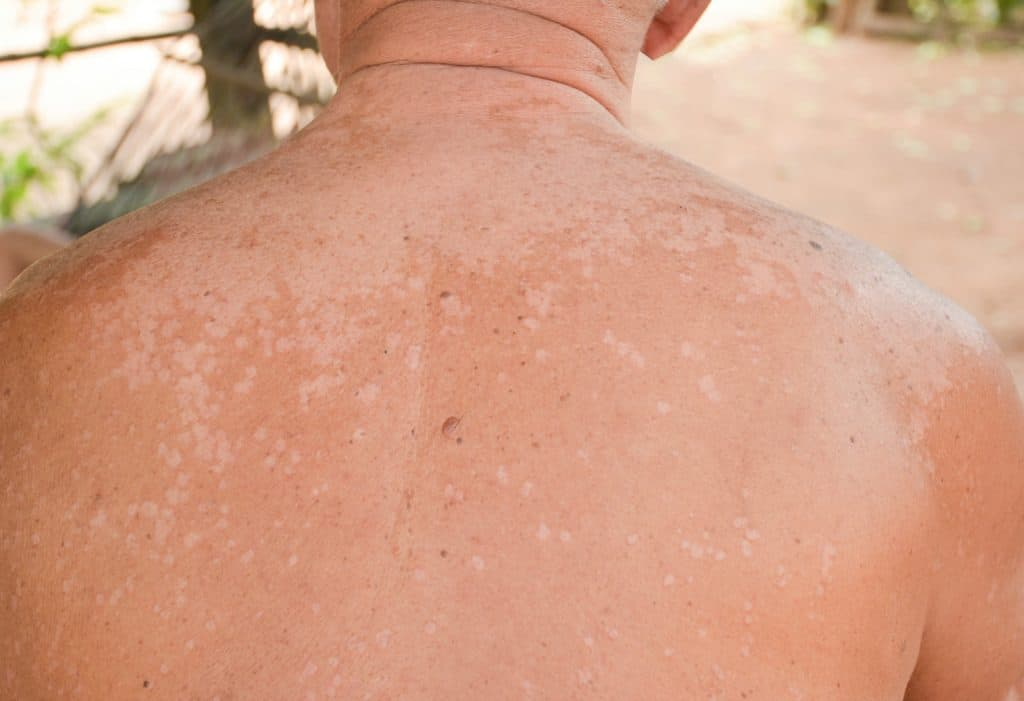 Man sieht den Rücken eines Menschens der von Kleienpilzflechte befallen ist.
