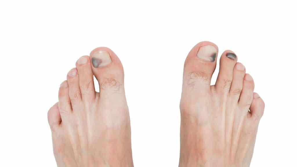 Blauer Zehnagel, drei Nägel sind betroffen, die beiden großen Zehnägel und der daneben