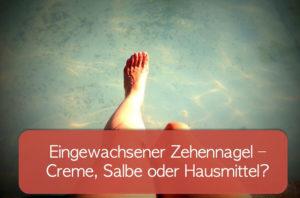Read more about the article Eingewachsener Zehennagel mit Salbe oder Hausmittel behandeln?