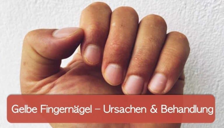 Hand mit gelben Fingern und Nägeln vor weißer Wand
