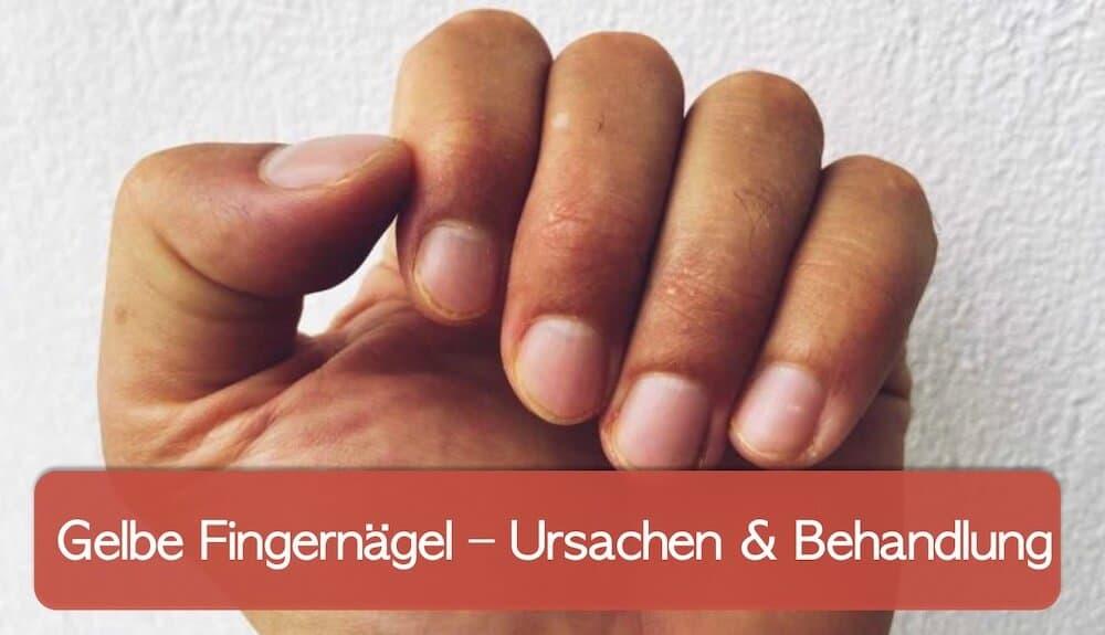 You are currently viewing Gelbe Fingernägel: was bedeuten sie und was kann man dagegen tun?