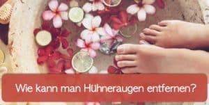 Read more about the article Hühnerauge entfernen – Diese Mittel gibt es!