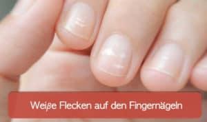 Read more about the article Weiße Flecken auf den Fingernägeln und weitere Verfärbungen der Nägel