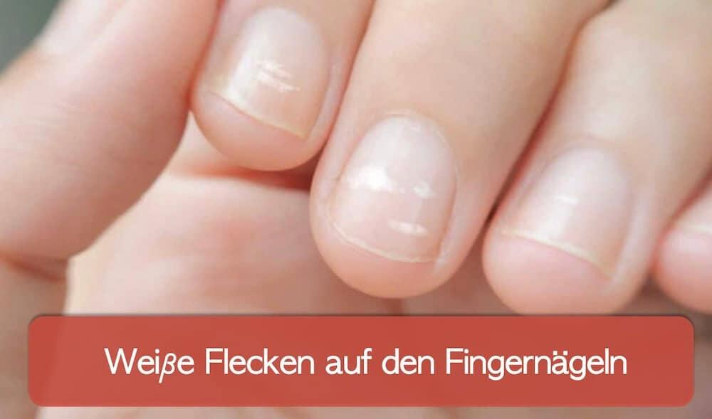 You are currently viewing Weiße Flecken auf den Fingernägeln und weitere Verfärbungen der Nägel
