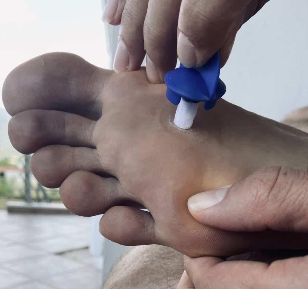 Schaumstoffapplikator von Wartner Spray gegen Fußwarzen auf der Warze