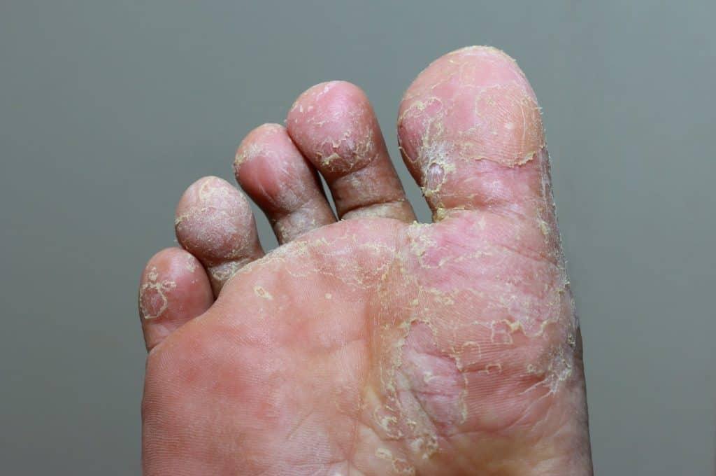 Fußpilz ist die häufigste Art von Hautpilz.