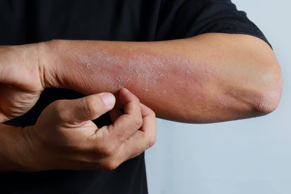 Mann kratzt sich am Arm, der von Hautpilz befallen ist.
