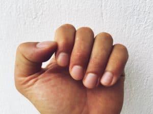 Gelbe Fingernägel: was bedeuten sie und was kann man dagegen tun?