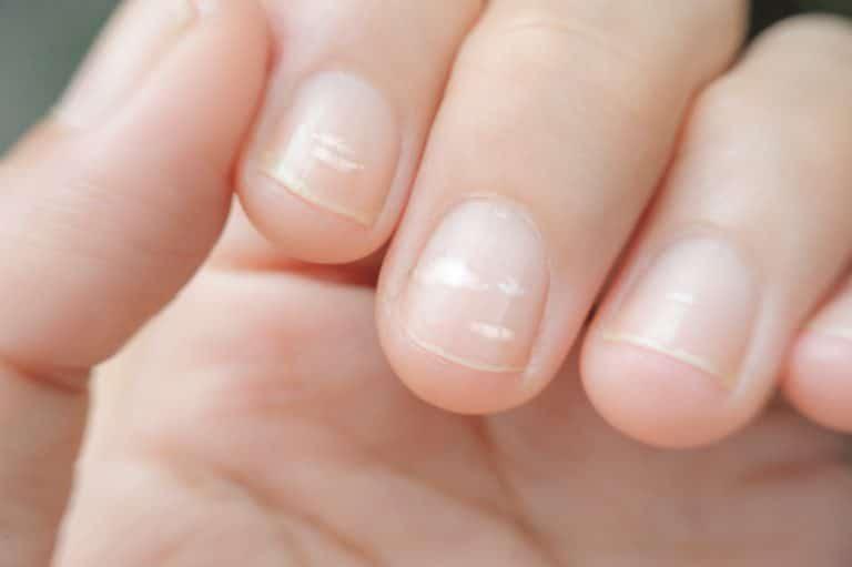 Mehrere Fingernägel sind von den weißen Flecken betroffen.