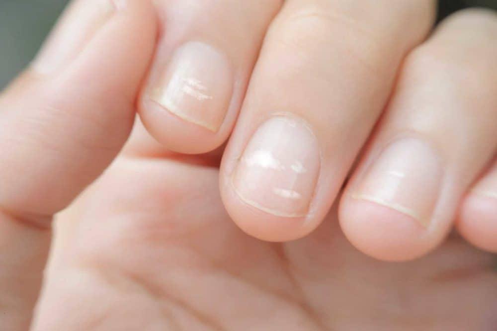 Weiße Flecken auf den Fingernägeln und weitere Verfärbungen der Nägel