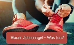 Read more about the article Blauer Zehennagel: woher kommt er und was kann man dagegen tun?