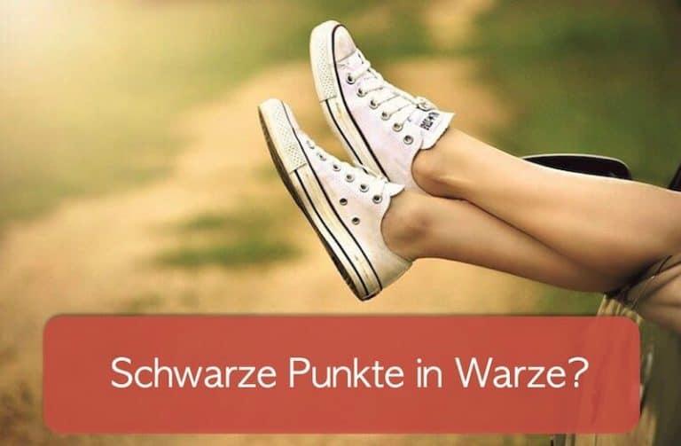 Füße mit Schuhen, die aus einem Auto gestreckt werde. Symbolisch dafür dass Personen versuchen, bei Warze schwarzer Punkt rausziehen.