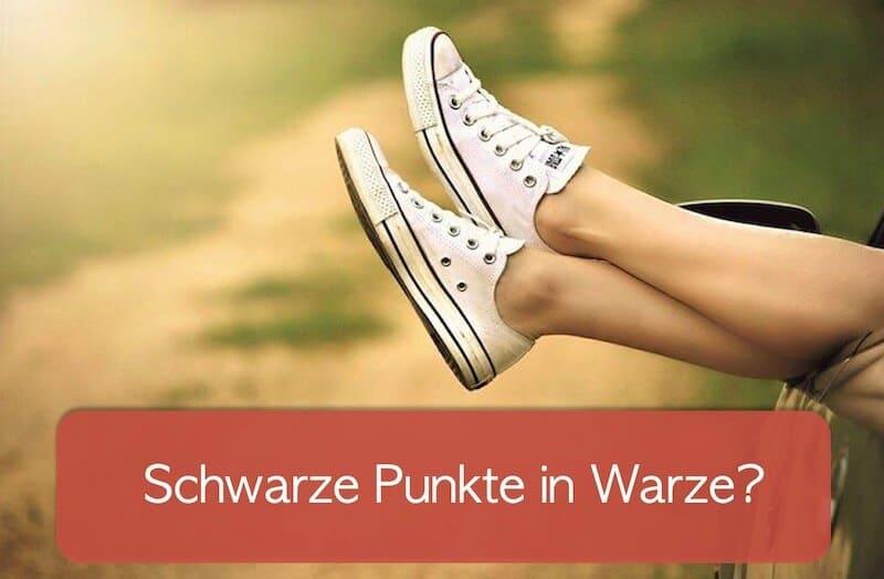 Read more about the article Warze mit schwarzen Punkten: Was bedeuten sie?