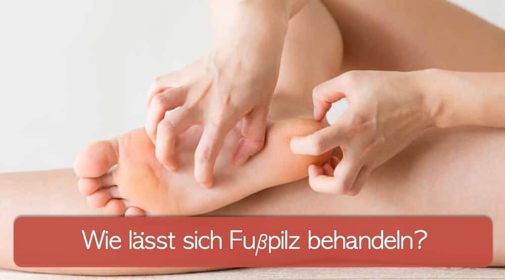Frau kratzt sich an den Füßen. Juckreiz ist ein sehr typisches Symptom für Tinea Pedis.