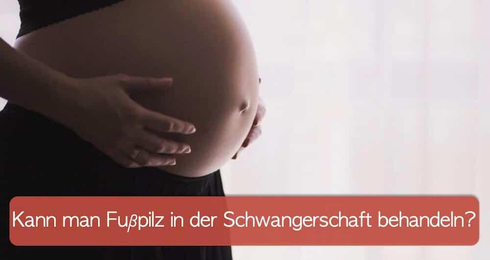 Schwangere Frau hält ihren Bauch symbolisch für Pilzinfektionen Schwangerschaft