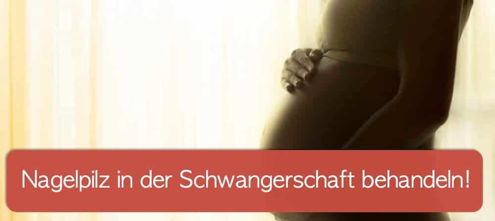 Schwangere Frau hält sich ihren Bauch: Nagelpilz kann auch in der Schwangerschaft vorkommen