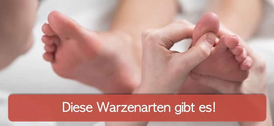 Arzt untersucht Fuß eines patienten auf warzen