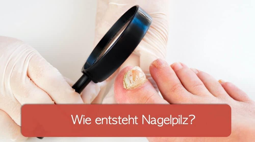 Arzt untersucht Nagelpilz auf Ursachen