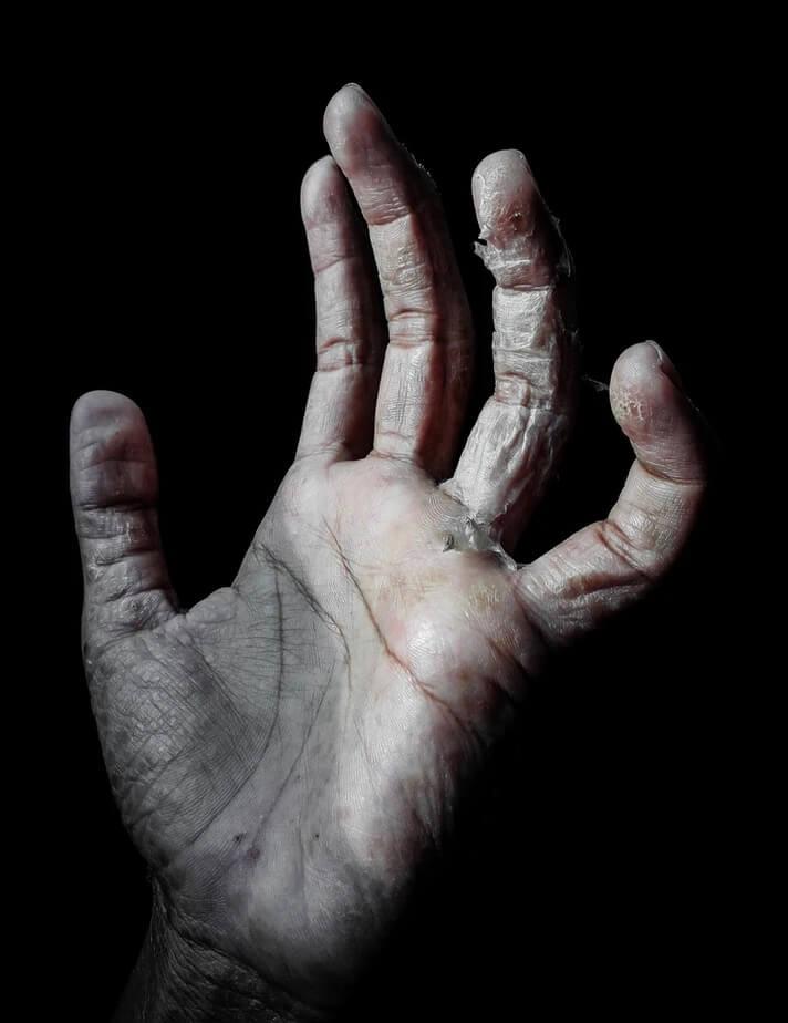 Trockene und rissige Hände