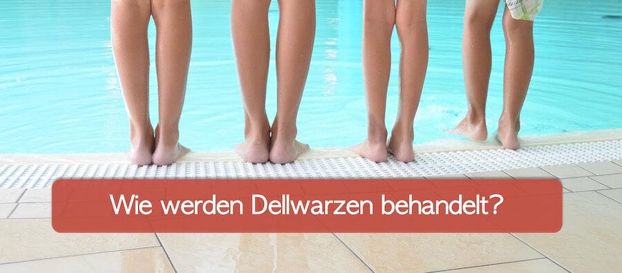 Vier Kinderbeine im Schwimmbad am Beckenrand, Wie werden Dellwarzen behandelt?