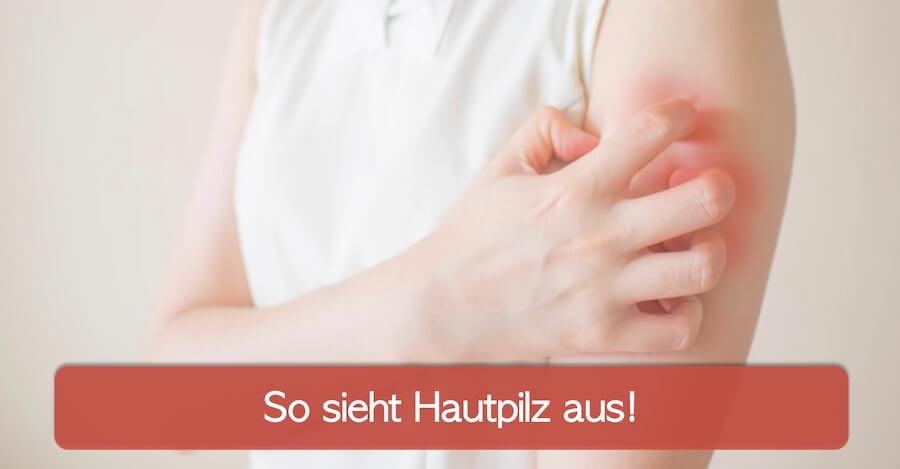 Hautpilz Bilder und Symptome