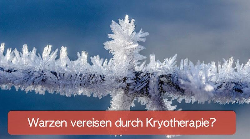 Eiskristalle am Ast eines Baumes. Das Eis symbolisiert die Kryotherapie von Warzen.