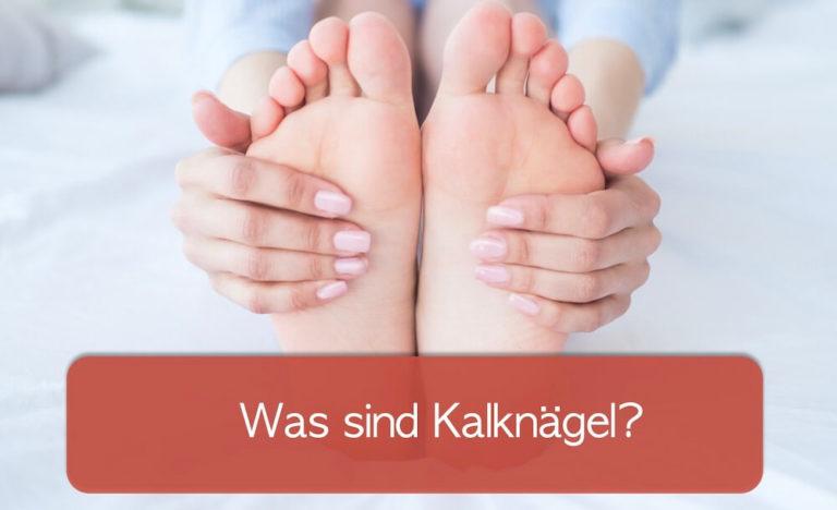 Wie kann man einen Kalknagel erkennen? Bild mit Fuß- und Fingernägeln