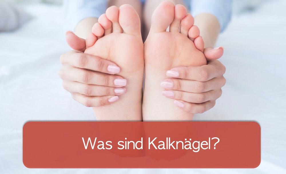 You are currently viewing Kalknägel entfernen: Helfen Hausmittel?