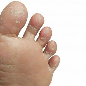 Häufig kommt der Fusspilz zwischen den Zehen vor.